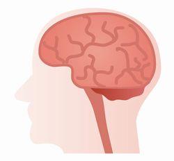 脳梗塞 初期症状
