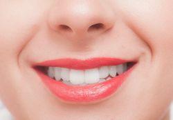 大人 歯科矯正