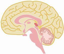 脳出血 クモ膜下出血 違い