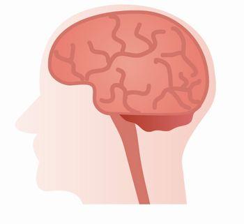脳動脈瘤 大きさ