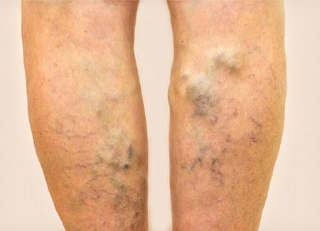 下肢静脈瘤の重度