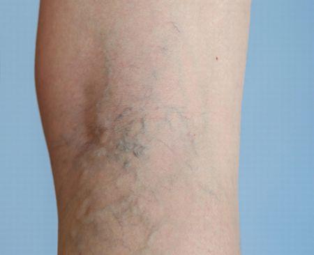 足の血管が網の目