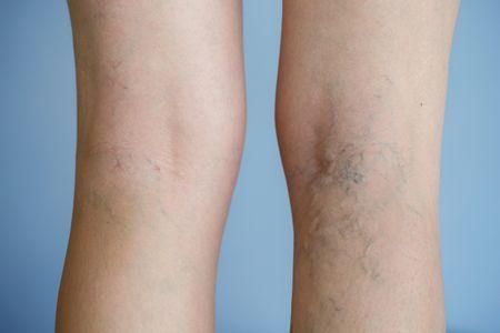 足の血管が目立つ