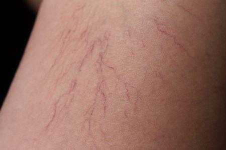 足がクモの巣のような血管になる