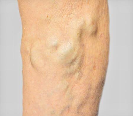 足の血管がデコボコになる