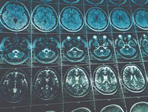 認知症はMRIで分かる?