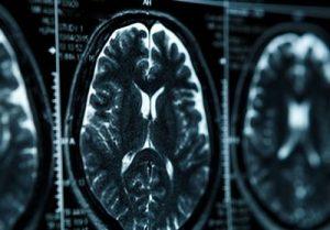 治る認知症のタイプは?